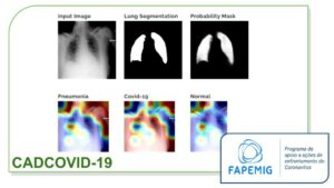 Diagnosis Aid Using Chest X-Ray and Deep Learning